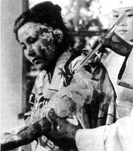 Hiroshima burn victim